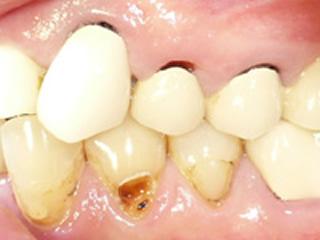 口腔内検査 現在のお口の中の状態を検査します。
