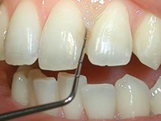 歯周病(歯ぐき)の検査 歯ぐきの病気と進行度合いを調べます。
