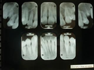 口腔内レントゲン撮影 肉眼では見ることができない虫歯、歯周病の進行度、治療状態の良否、歯を支える骨の状態を調べます。