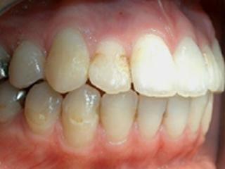 前歯治療症例紹介 Before 上の歯の前から2番目の歯と歯の間が、以前詰めたものにより変色して虫歯になってしまいました。