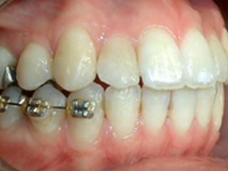 前歯治療症例紹介 After コンポジットレジン修復で虫歯と審美的な回復の治療を施したところです。