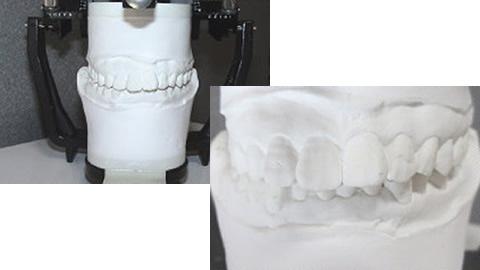 レントゲン撮影 かみ合わせの治療の際、原因も追求せず、いきなり歯を削ることはありません。かみ合わせの調整の前に個別に歯の形をとり、模型上でかみ合わせがどんな具合か診査・診断します。