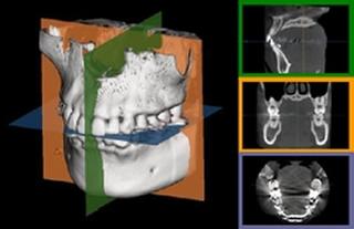 CT画像 立体で把握