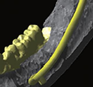下顎管仮抽出