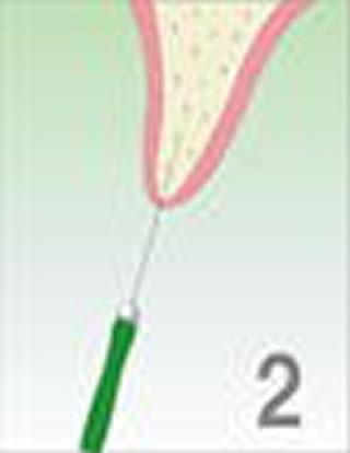 O・A・Mインプラントシステム治療の流れ 細いリーマーで専用器具の細い通り道をつくります。