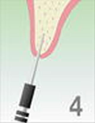 O・A・Mインプラントシステム治療の流れ 太さを替えてだんだん穴を大きくしながら、さらに丈夫な骨にします。