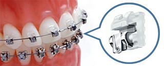 デイモンシステム ハイテクブラケットと最先端ワイヤーにより歯列矯正に最適な力を実現。