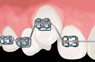 従来のシステム 従来の矯正はワイヤーで歯一本まるごと結紮する。
