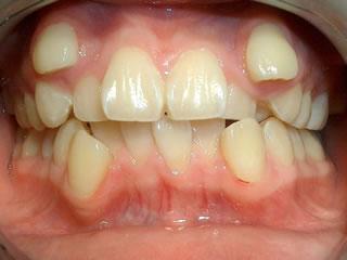 デイモンシステム CASE.1 顎が小さく全部の歯が並びきらず叢生になっております。※叢生(そうせい)とは歯が重なって生えてしまうことです。