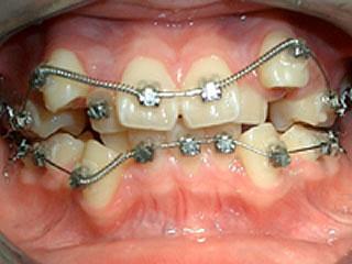 デイモンシステム CASE.1 矯正装置を装着し、10日ほどたったところです。上の犬歯がかなり下がってきているのが分かると思います。
