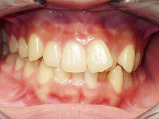 デイモンシステム CASE.2 右側の前から2番目の歯が奥に入って前歯がずれています。