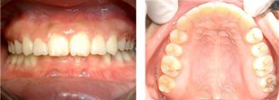 デイモンシステム CASE.3 矯正治療開始1年3ヶ月。矯正終了時のお写真です。