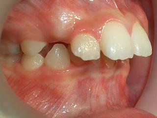 ビムラー 上の顎と歯がかなり前に出ています。