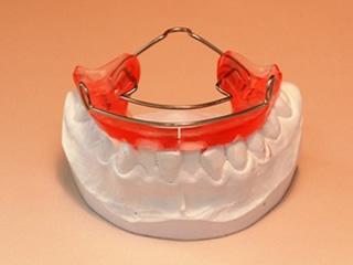 バイオネーター 上顎前突や深い咬み合わせの改善のため使います。