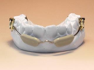 リップバンパー 6歳臼歯を奥へ移動させるのに使います。
