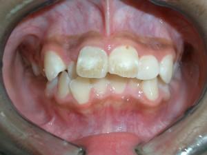 ヤニがついた子供の歯
