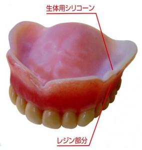 コンフォート義歯画像